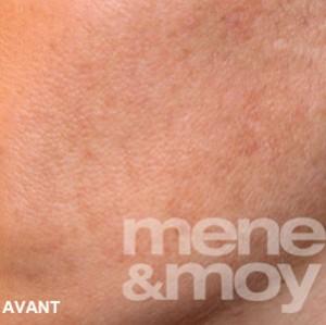 Mene&Moy-avant peeling